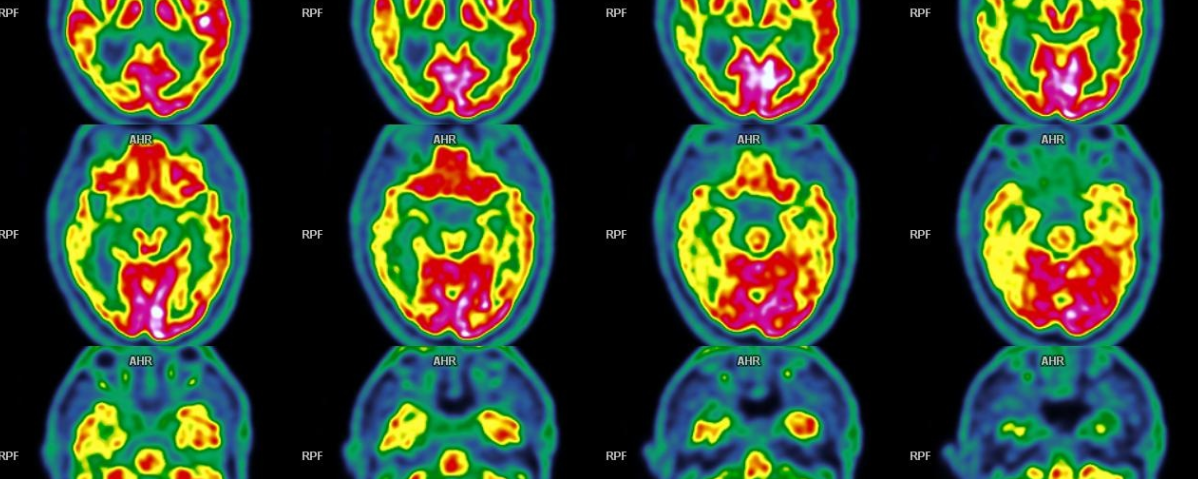 Maladie d'Alzheimer – TEP FDG