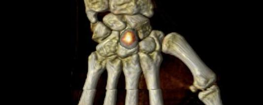 Ostéonécrose post traumatique du capitatum