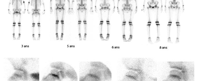 Scintigraphies osseuses normales enfants de 4 à 8 ans
