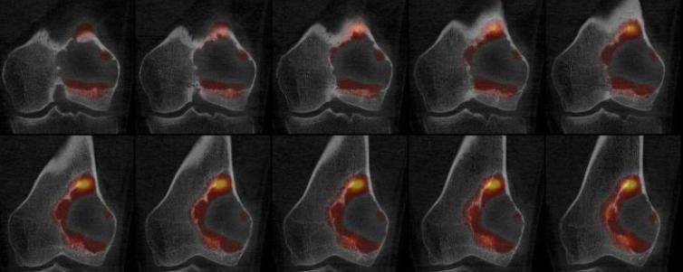 Tumeur à cellules géantes fémorale