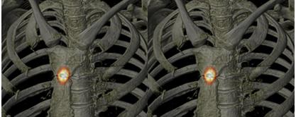 Arthrite manubrio sternale inflammatoire