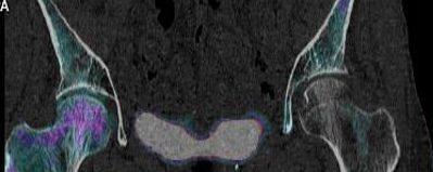 Fixation osseuse sur trame osseuse remaniée