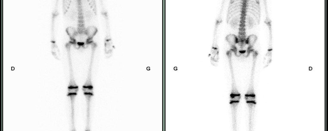 Ostéomyélite bifocale