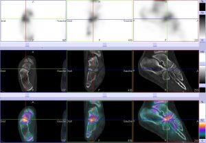 Synfibrose calcanéo-naviculaire - Tomo 3 Axes