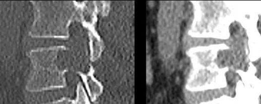 Tumeurs osseuses bénignes
