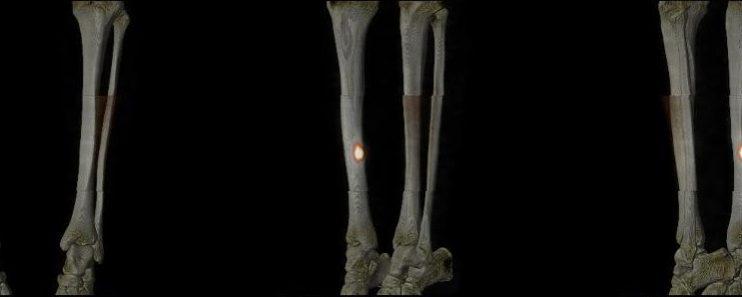 Fracture de contrainte du tibia droit