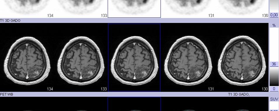 Suspicion de récidive tumorale cérébrale TEP-FDG