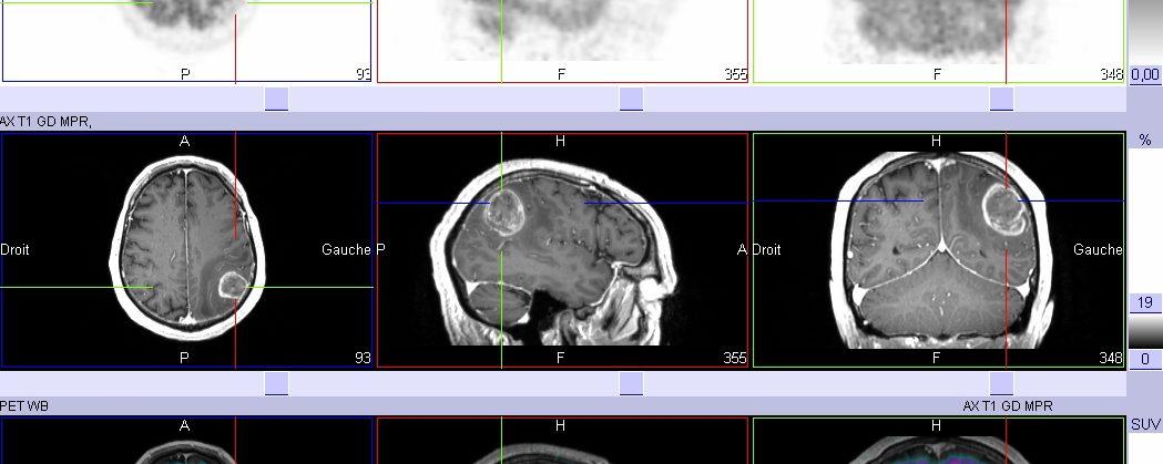 Récidive vs radionécrose tumorale cérébrale TEP-FDG