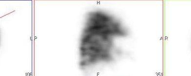 Embolie Pulmonaire du Segment 4 Gauche