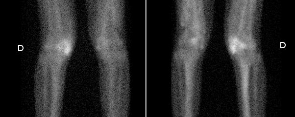 Myosite ossifiante associée à une paraosthéoarthropathie neurogène