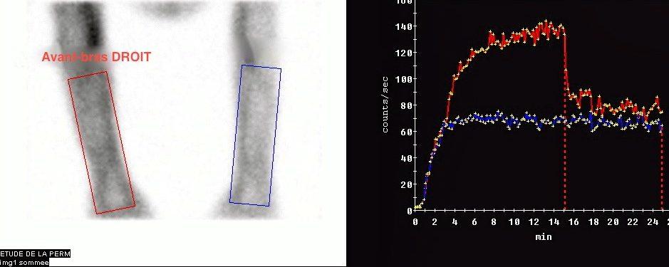 Test de Landis – mesure de la perméabilité capillaire