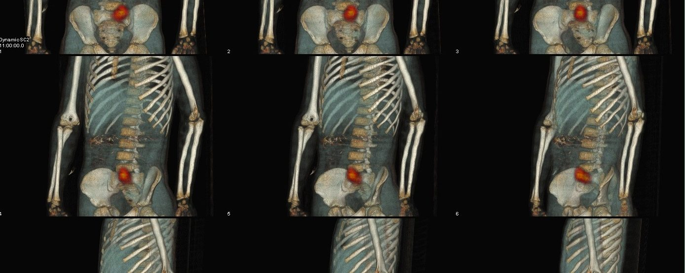Hémorragie digestive basse de l'enfant