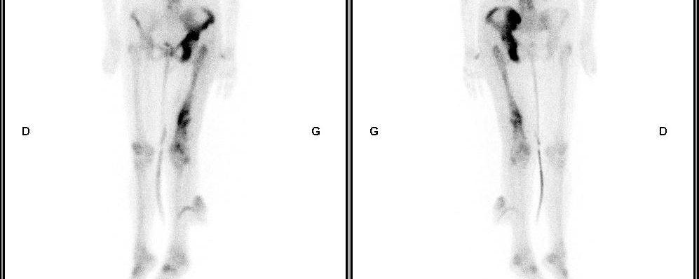 Métastases osseuse sur maladie de Paget