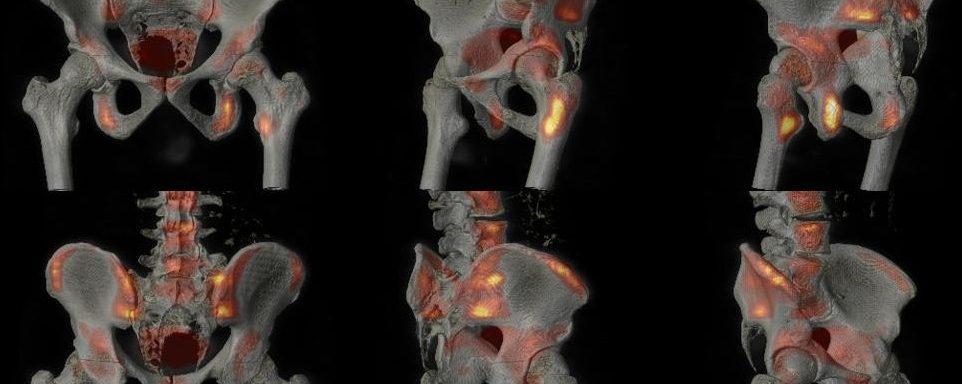 Ostéome ostéoïde et syndrome de Bertolotti