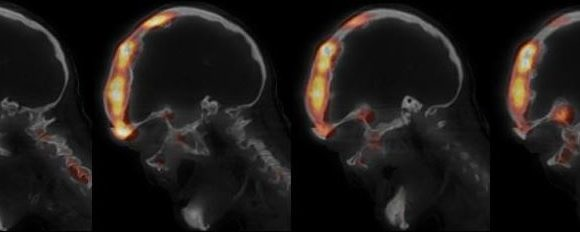 Hyperfixation en scintigraphie osseuse du massif facial. A propos d'un cas de dysplasie fibreuse monostotique.