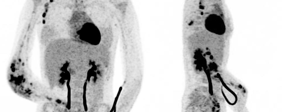 Ostéo arthrite tuberculeuse