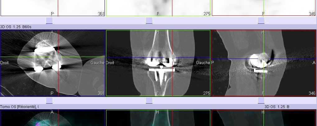 Descellement prothèse du genou droit