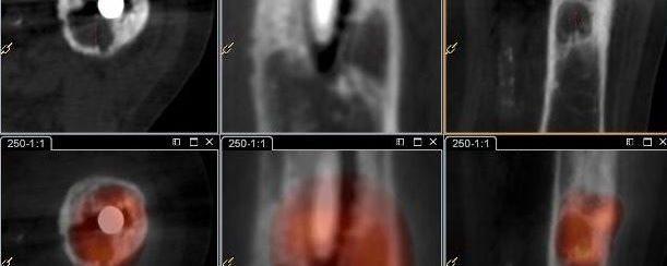 Granulome et ostéolyse prothétique