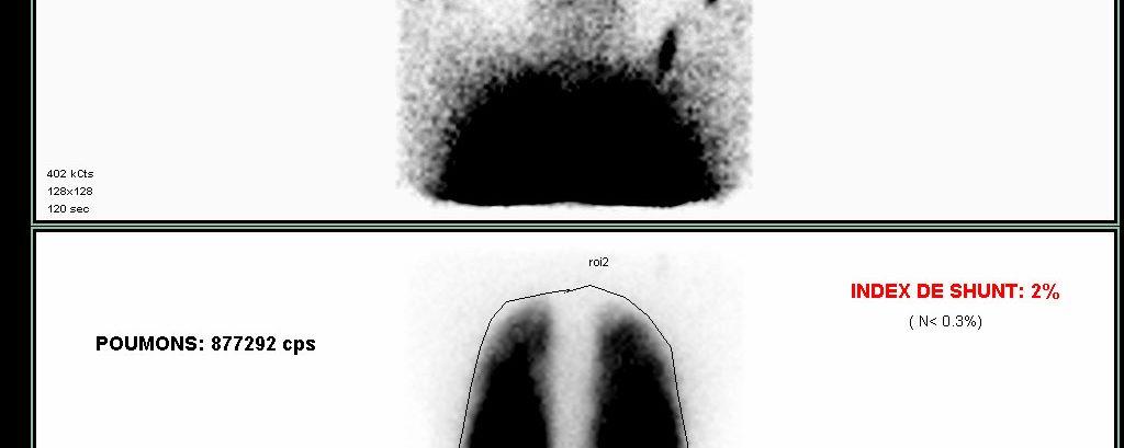 Syndrome hepato-pulmonaire (shunt)