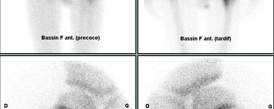 Ostéome ostéoïde fémoral gauche