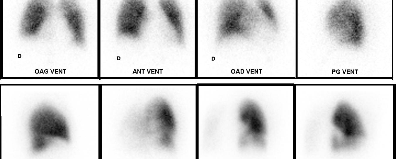 Sténose congénitale des artères pulmonaires