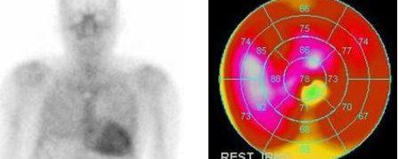Amylose cardiaque à transthyrétine – Scintigraphie osseuse