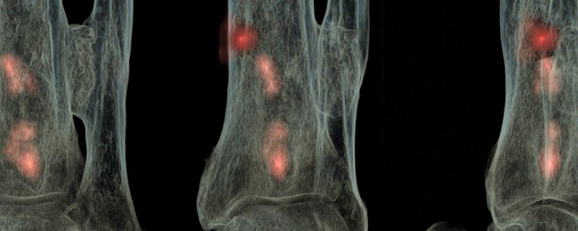 Ostéomyélite chronique