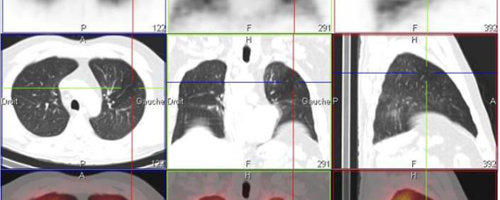 Stratégie de prise en charge de l'embolie pulmonaire et place de la Scintigraphie pulmonaire – version longue