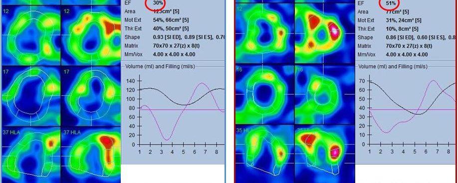 HTAP – Scintigraphie myocardique – Insuffisance cardiaque droite isolée à fonction VG conservée.