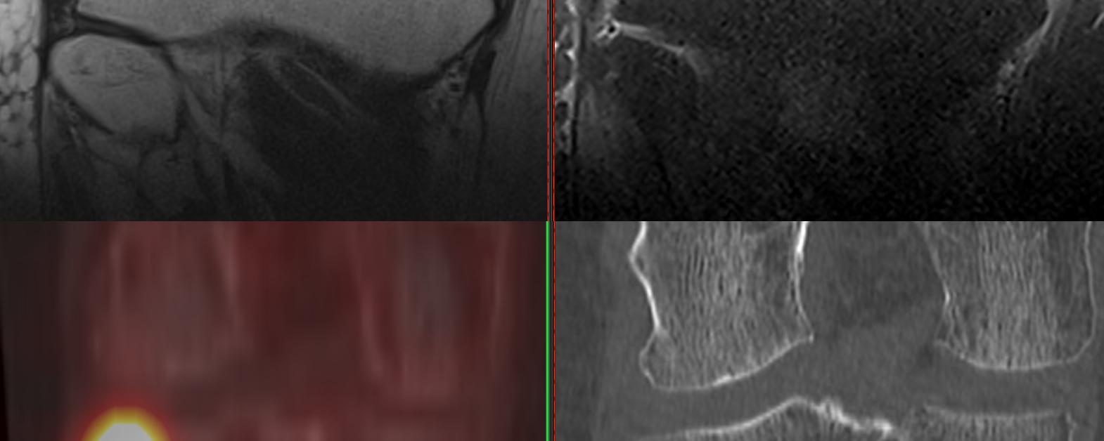 Fracture de contrainte du plateau tibial latéral droit