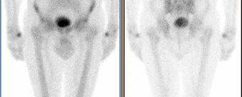 Maladie de Paget, TEP FDG et Scintigraphie osseuse