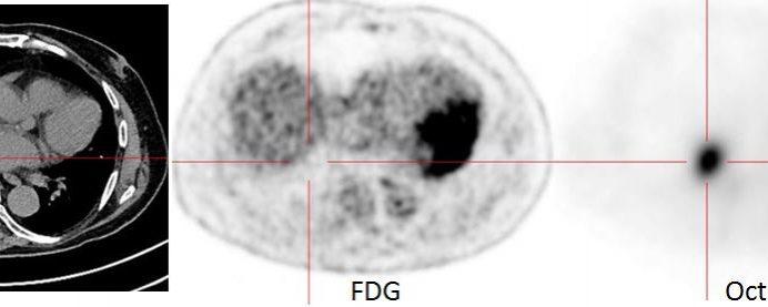 Carcinoïde bronchique, en attendant le Gallium 68…