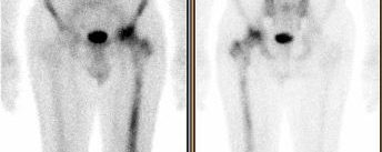 Lymphome osseux primitif