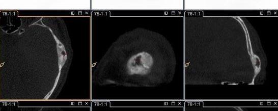 Dysplasie fibreuse du crâne