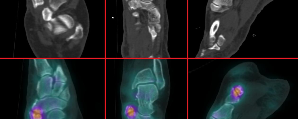 Syndrome de l'os naviculaire accessoire