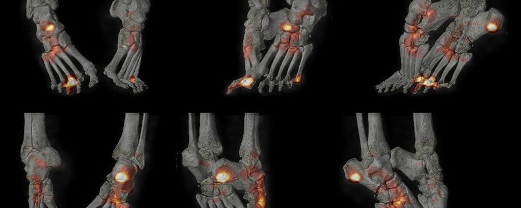 Spondylarthrite: rhumatisme psoriasique