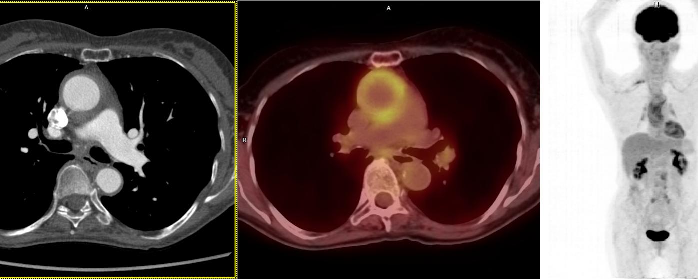 TEP FDG dans l'artérite à cellules géantes