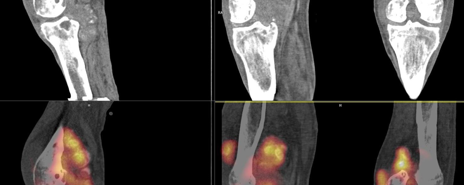 Ostéochondromatose synoviale en scintigraphie osseuse
