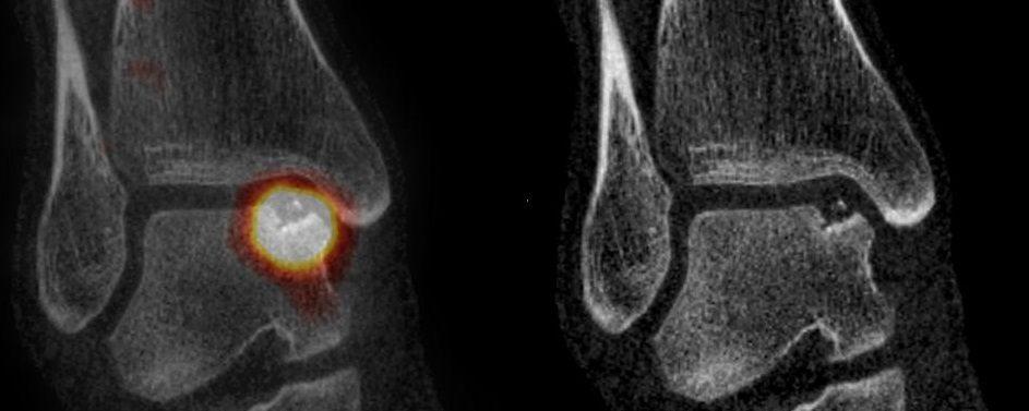 Pour jouer à l'apprenti orthopédiste