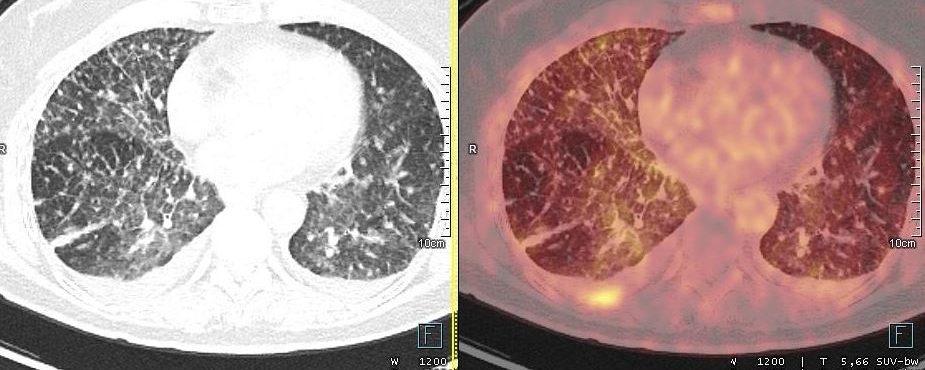 Micronodules pulmonaires