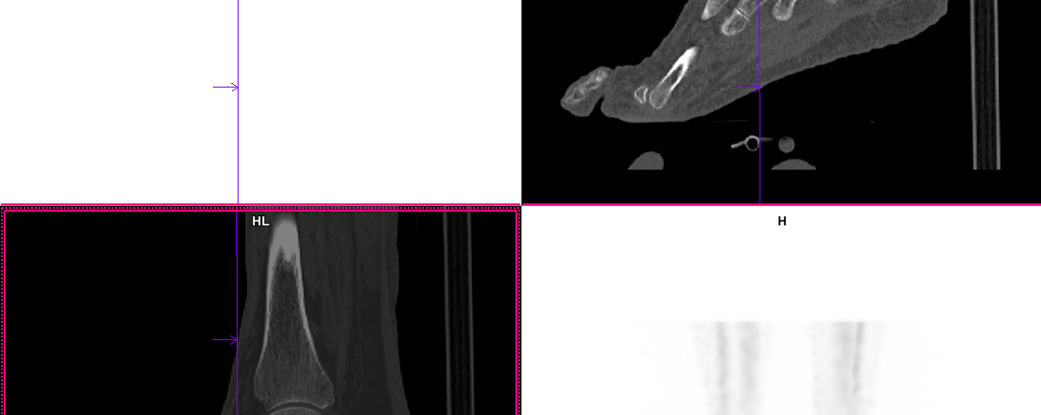 Syndrome de Muller Weiss en scintigraphie osseuse