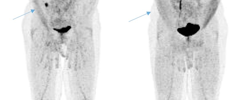 Critères d'interprétation TEP dans le myélome