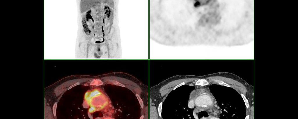 Infection de tube prothétique aortique