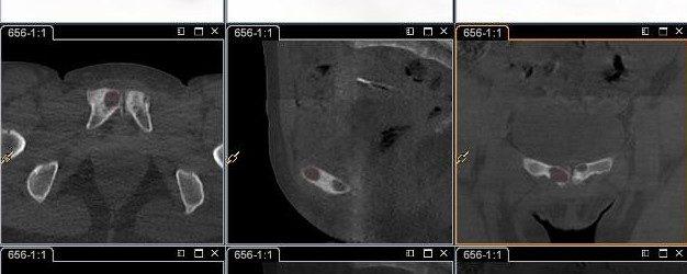 Symphysite pubienne – Pubalgie
