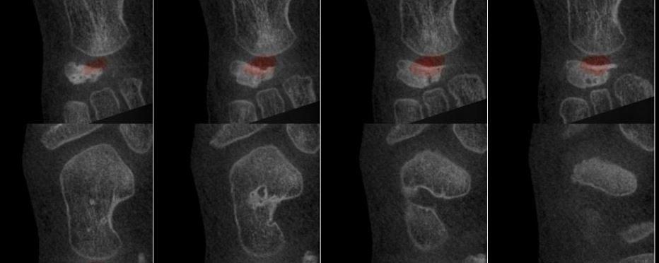 Ostéochondrite du naviculaire